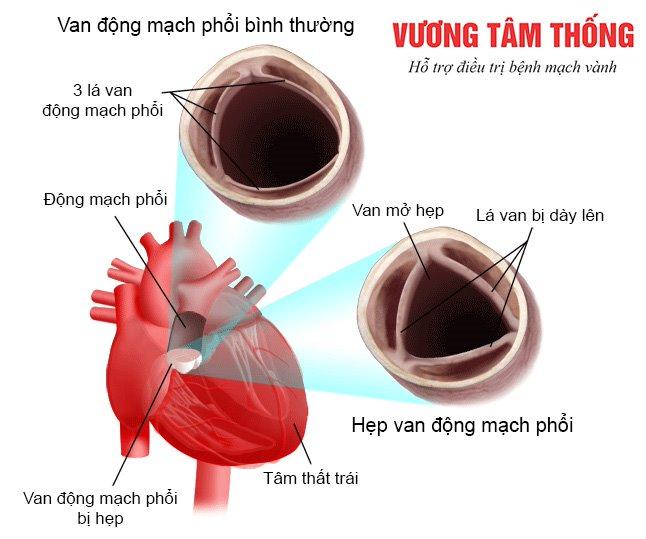 Hẹp van động mạch phổi có thể chữa khỏi nếu phát hiện từ sớm